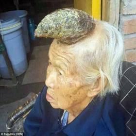 Mulher-unicórnio? Chinesa de 87 anos impressiona por enorme chifre na testa